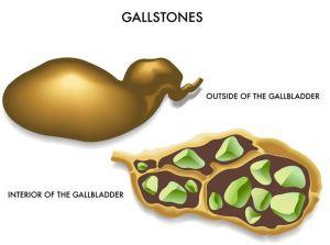 Gallstones2